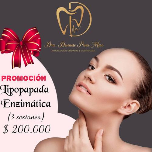 #bichectomia bichectomia #lipopapada enzimatica +56977130484