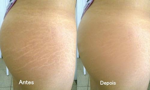 bio oil  aceite especial arrugas, estrías y cicatrices 125ml
