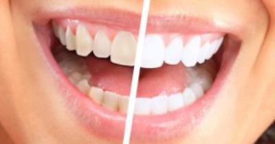 blanqueador dental belleza