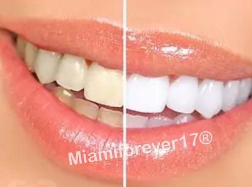 blanqueador dental kit whitening oral gel al 44% 10 jeringas