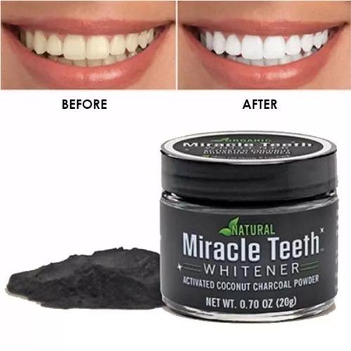 blanqueador dental miracle dientes whitener por mayor