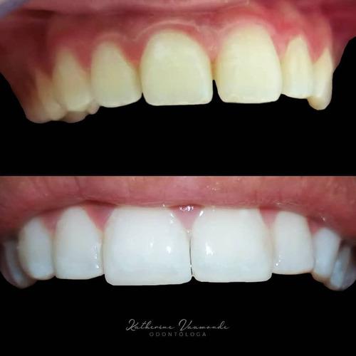 blanqueamiento dental. carillas. diseño de sonrisa. resinas