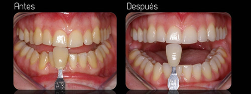blanqueamiento dental glanz uso profesional. 12 pacientes