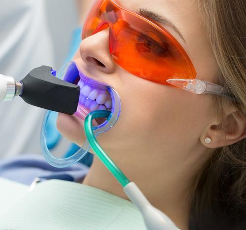 blanqueamiento dental laser en consultorio mont- p. del este
