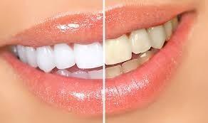 blanqueamiento dental led + limpieza  ultrasonido belgrano
