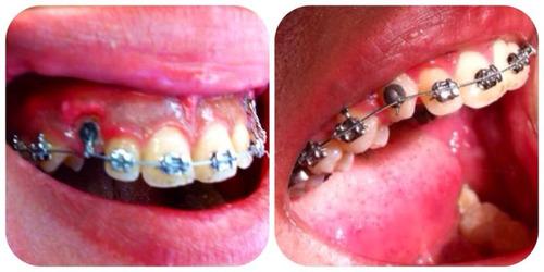 blanqueamiento dental led y limpieza dental con ultrasonido