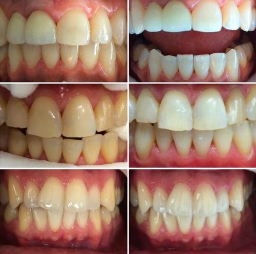 blanqueamiento dental + limpieza + flúor (zona congreso)