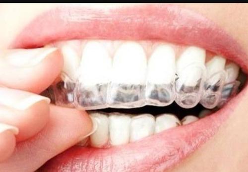 blanqueamiento dental profesional, hecho por odontologos