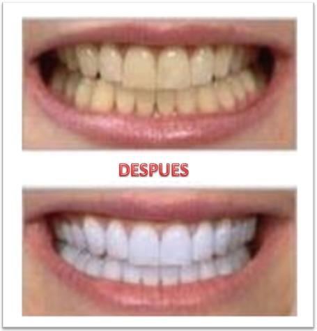blanqueamiento dental usa 100% orig- dientes blancos