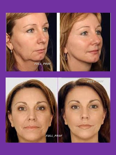 borra arrugas profundas revierte el tiempo idraet+50 retinol