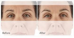 botox chau arrugas , aumento de labios hialurónico