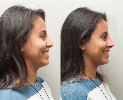 botox facial, preenchimento e harmonização facial