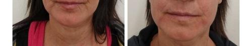 botox hialurónico verrugas medicina estética - villa urquiza