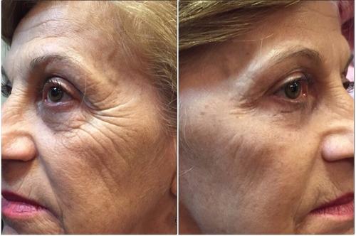 botox sem agulhas (instantly ageless)