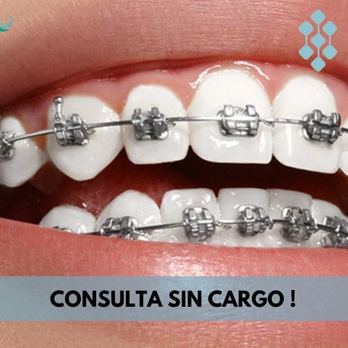 brackets metálicos - ortodoncia a tu alcance !