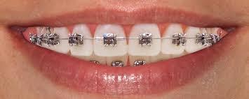 brackets - ortodoncia