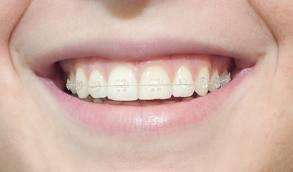 brackets - ortodoncia promoción 2017  - dentista