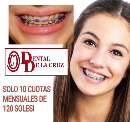 brackets, ortodoncia, tratamiento ortodoncico sin inicial