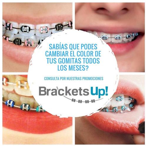 brackets up! tu sonrisa a la moda. ortodoncia de calidad