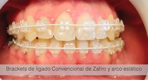 brackets/ortodoncia convencional, lingual y autoligado en 3x