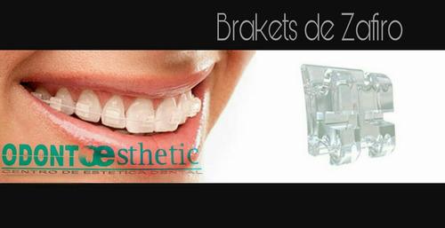 brakets, ortodoncia, correctores, estética