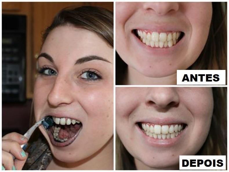 Branqueador Clareador Dental Dentes Carvao Em Po Natural R 24 90