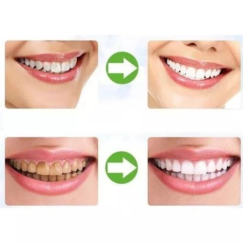 Branqueador Dentes Carvao Em Po Ativado Profissional Natural R 20