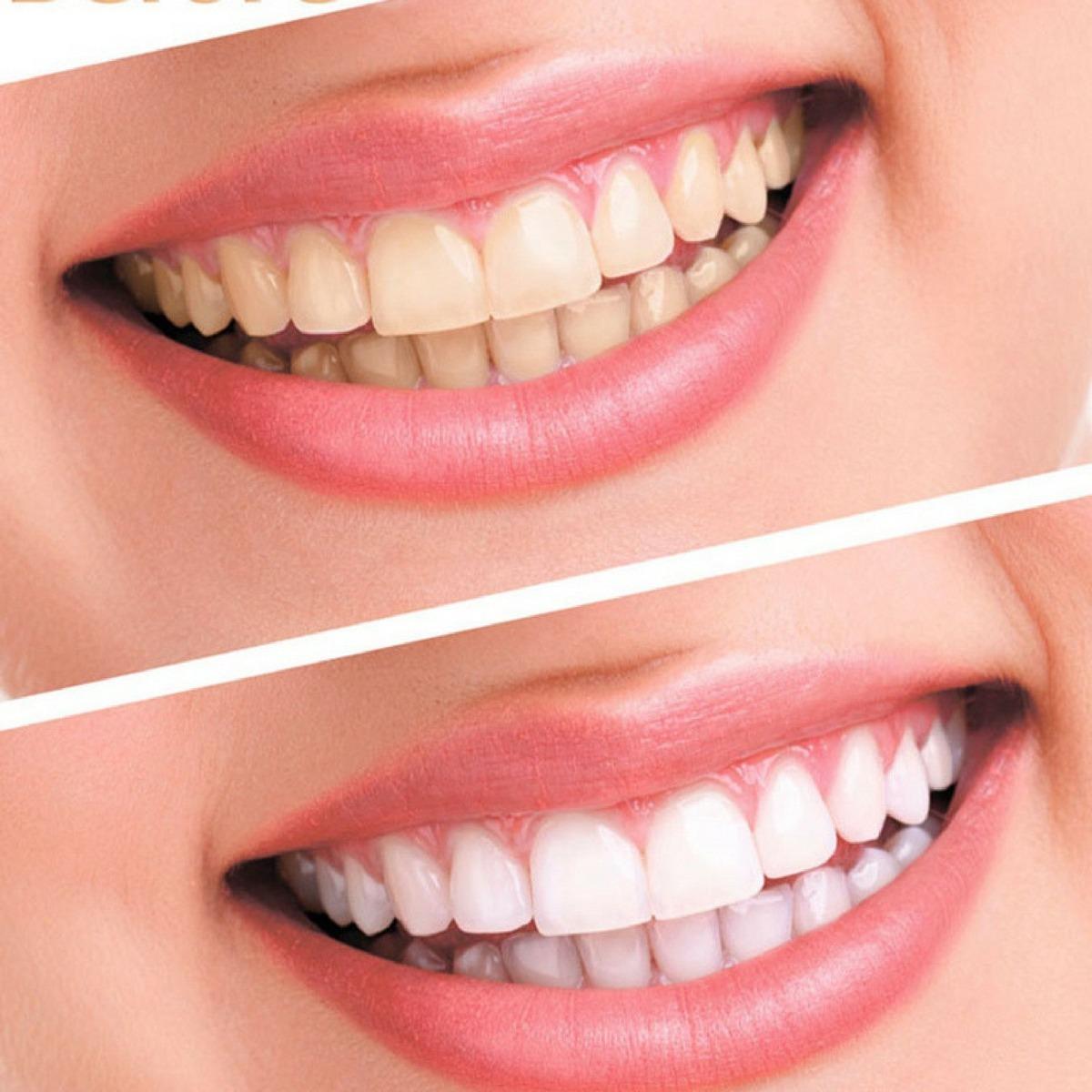 Branqueamento Do Dente Led Gel Molde Clareamento Dental Oral R 37