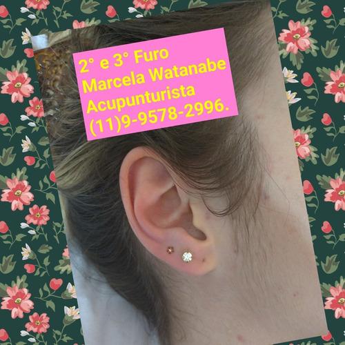 brinco! furo de orelha com acupunturista!