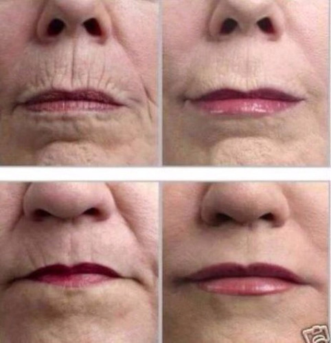 caja instantly ageless arrugas, ojeras, acné, cicatrices