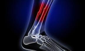 calcio adultos huesos osteoporosis músculos nutrición