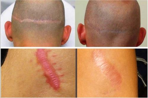 camuflaje de estrías y cicatrices ¡mejora la apariencia, q