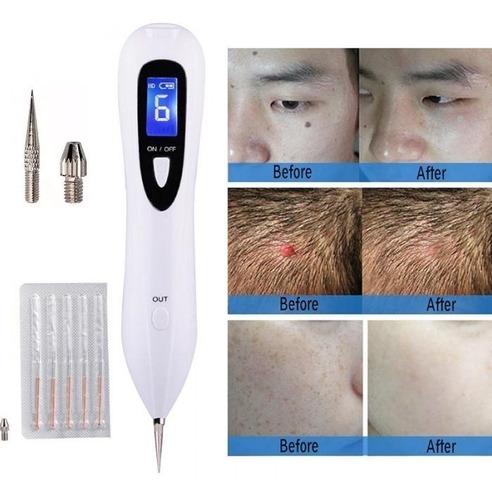 caneta despigmentador manchas verrugas jato de plasma