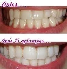 Caneta Gel Para Clarear Os Dentes Gel Branqueamento R 29 00 Em