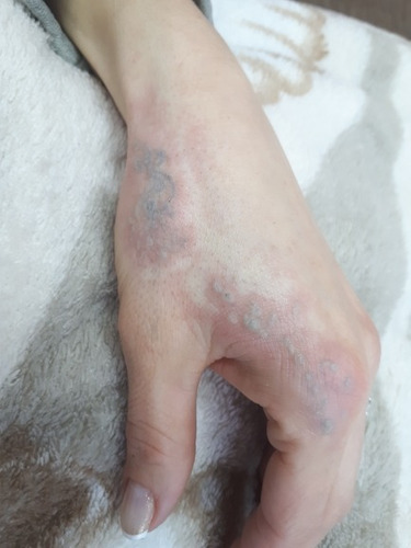 caneta laser removedora tatuagem profissional vermelho azul