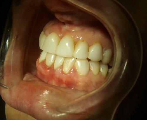 carillas de porcelana en 6 dientes en caballito