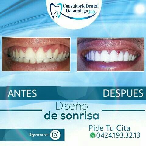 carillas de resina sin desgaste dental