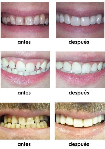 carillas dentales composite porcelana