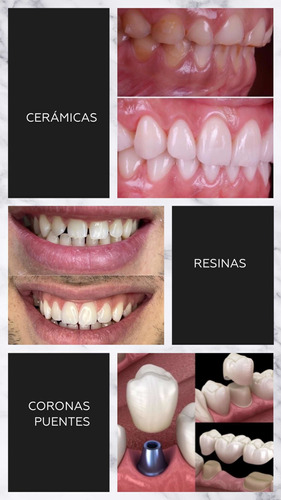 carillas  dentales . coronas . biodesign .
