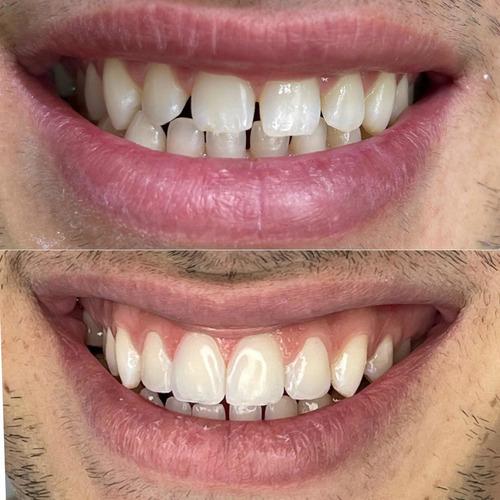carillas  dentales . coronas . consulta