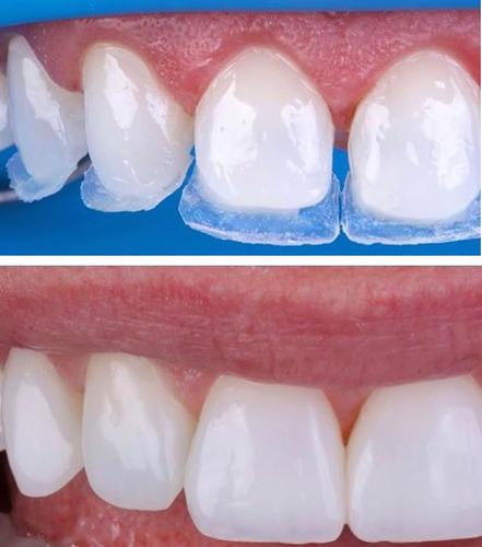 carillas dentales de resina en 6 dientes en caballito