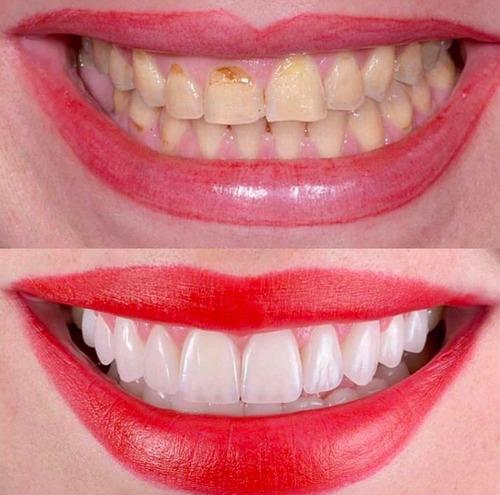 carillas dentales en resina (ultra esteticas y resistentes)