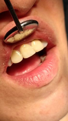 carillas dentales  -estetica y función