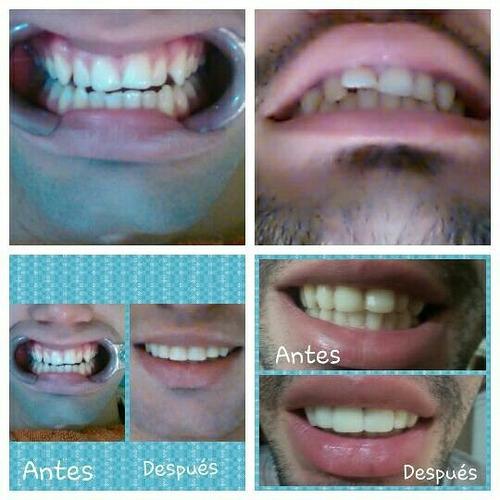 carillas, ortodoncia y diseños de sonrisas!!