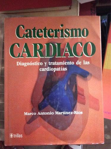 cateterismo cardiaco - marco antonio martínez-ríosrios