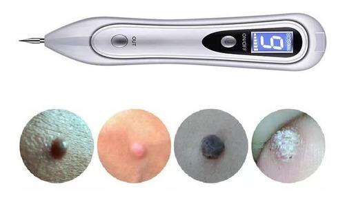 cauterio plasma pen removedor verrugas lunares tatuaje pecas cauterizador plasmapen removedor imperfecciones c/ repuesto