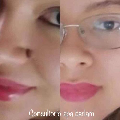 cauterizacion de lunares o verrugas