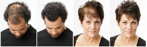 cepillo crecimiento y anticaida de cabello como visto  en tv