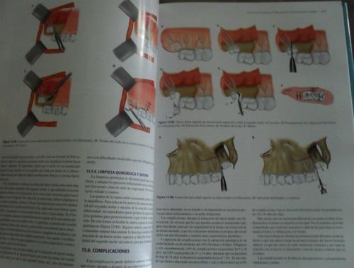 cirugia bucal - 2t + dvd / oceano