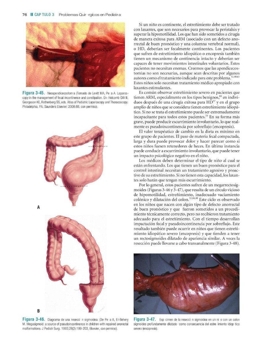 Cirugía De Colon Y Recto De Corman 6 Ed. 2tomos - $ 11.595,00 en ...